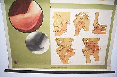 Rollkarte Lehrkarte Verstauchung Verrenkung M.R. signiert Hygiene Museum (12 4