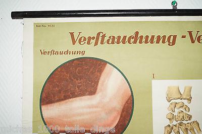 alte Rollkarte Rolltafel Lehrtafel Wandkarte Verstauchung Verrenkung Nr. 9531