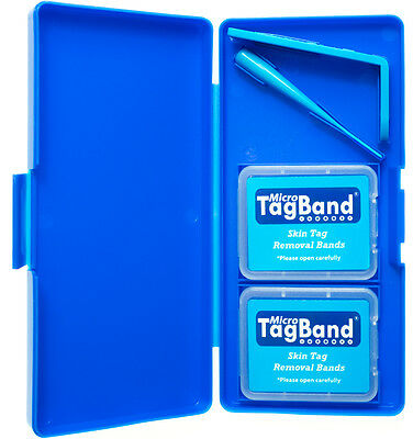 Deluxe Micro TagBand Skin Tag Remover Kit with Extra Bands and Free Retainer Box 2