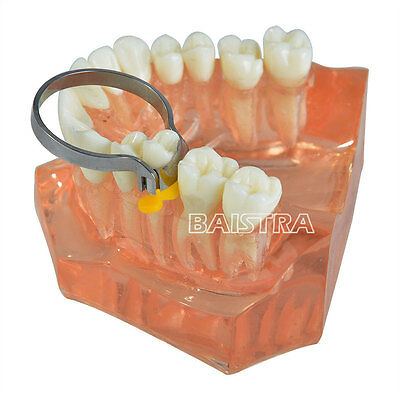 1 Pk Dental Lab Sectional Contoured Metal Matrices 35 μm 100Pcs/Pack & 2 Rings 2