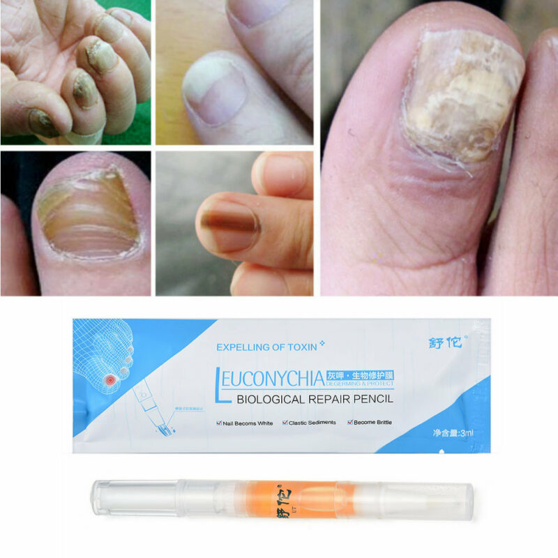 HERBAL ANTI FUNGAL Nail Infection Chinese Herbal Toe Nail Fungus ...