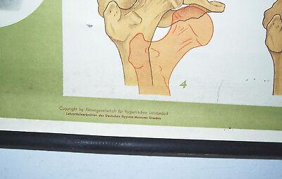 Rollkarte Lehrkarte Verstauchung Verrenkung M.R. signiert Hygiene Museum (12 6