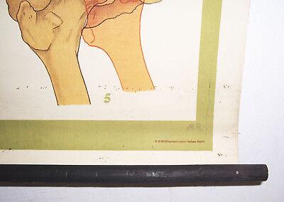 Rollkarte Lehrkarte Verstauchung Verrenkung M.R. signiert Hygiene Museum (12 7