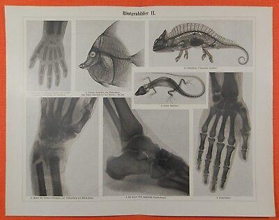 Röntgenbilder Röntgenstrahlen Röntgenaufnahmen   I + II Radiologie Stich v. 1898 2