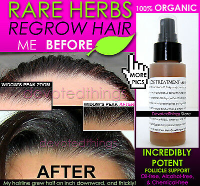4b8903899d5 ... BEST SUPER FAST Hair Growth System Natural Hair Growth Products KIT of  3 2