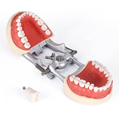 Kilgore NISSIN 200 Type Teeth Dental Typodont Teeth Model With Removable Teeth 7