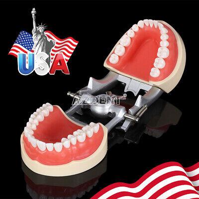 Kilgore NISSIN 200 Type Teeth Dental Typodont Teeth Model With Removable Teeth 12