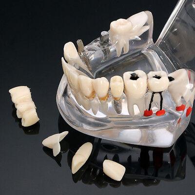 Pro Dental Study Education Teach Implant Teeth Model Restoration Bridge Caries 2