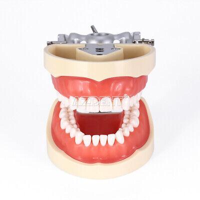 Kilgore NISSIN 200 Type Teeth Dental Typodont Teeth Model With Removable Teeth 5