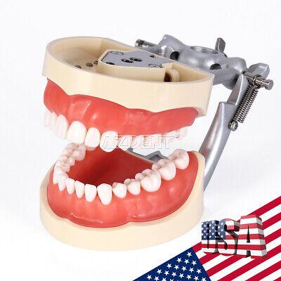Kilgore NISSIN 200 Type Teeth Dental Typodont Teeth Model With Removable Teeth 10