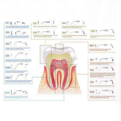 Dental Ultrasonic Scaler Scaling Endo Perio Tip F EMS Woodpecker Handpiece P-E-G 6