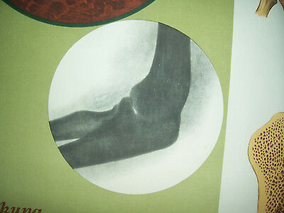 Rollkarte Lehrkarte Verstauchung Verrenkung M.R. signiert Hygiene Museum (12 8