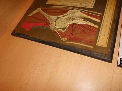 Alter Längsschnitt 1x Hüftgelenk, 1x Kniegelenk, Hermann Eppler, Rudolstadt,gebr