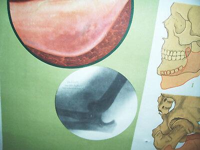 Rollkarte Lehrkarte Verstauchung Verrenkung M.R. signiert Hygiene Museum (12 9
