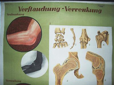 Rollkarte Lehrkarte Verstauchung Verrenkung M.R. signiert Hygiene Museum (12 2