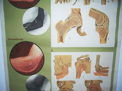 Rollkarte Lehrkarte Verstauchung Verrenkung M.R. signiert Hygiene Museum (12 3