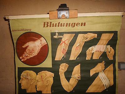 1x Blutungen / Lehrtafel (1522), gebr.Logo Deut. Hygiene. Museum Dresden