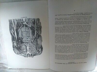 Antique Health Booklet, 1911, multum in Parvo, home cyclopedia of health.32 page 7