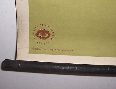 Rollkarte Lehrkarte Verstauchung Verrenkung M.R. signiert Hygiene Museum (12