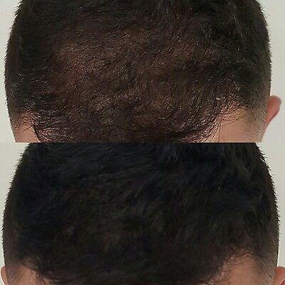 Sevich Keratin Thicker Hair Building Fiber Refill Packs 25 50 100g Natural UK 5