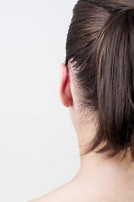 Correttore per orecchie Otostick, 8 unità - Protesi ipoallergenica di silicone 4