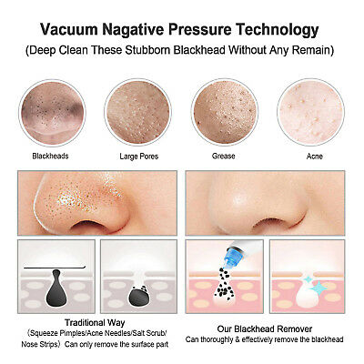 Electronic Blackhead Remover Vacuum Suction Facial Acne Pore Cleaner Extractor 7