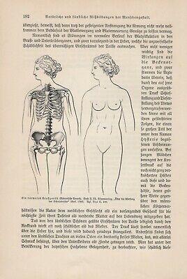 Brustgerüst Skelett Frau mit u. ohne Korsage deformiert HOLZSTICH von 1911 2