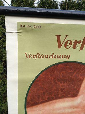 Alte Rollkarte Lehrtafel Schulwandkarte Mensch Verrenkung Verstauchung Loft Deko