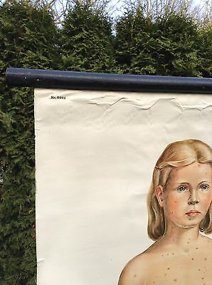 Alte Rollkarte Lehrtafel Schulwandkarte Mensch Infektionskrankheiten Kinder Deko