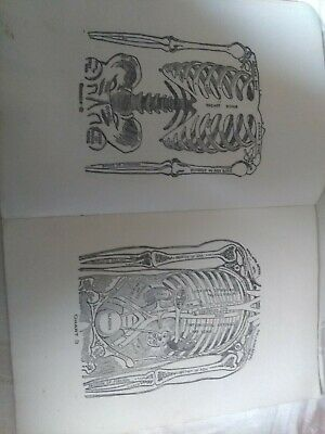 Antique Health Booklet, 1911, multum in Parvo, home cyclopedia of health.32 page 8