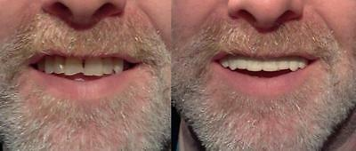 Imako Teeth Before And After