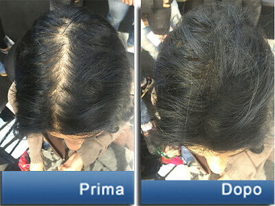 Toppik Hair Building Fibers - Fibre Di Cheratina 8