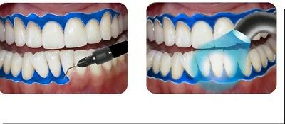 GUM DAM GINGIVAL BARRIER x 5 & 10 TIPS, LARGE 3ml, PROTECTION TEETH WHITENING