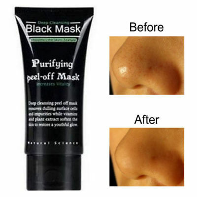 AU Blackhead Remover Nose Face Mask Strip Black Head Pore Acne Clean Mud / Brush 2