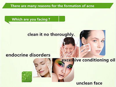 Acne Scar Removal Creamnatural Spotpimpleblemish Remedy For Skin Conditions