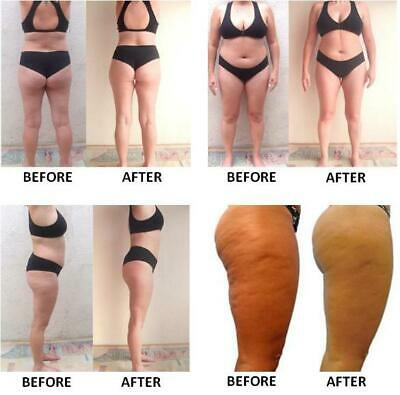WEIGHT LOSS PILLS,suppress Appetite,LOOSE FAT FAST,GAIN ENERGY,GET SKINNY 2
