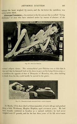25 medical books BIZARRE HUMAN DEFORMITIES freaks RARE DISEASES birth defect DVD 8