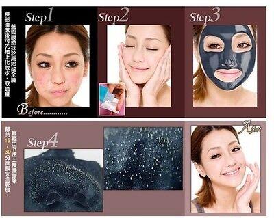 Shills Deep Cleansing Black MASK peel off facial acne mud Blackhead Remover Kit 10