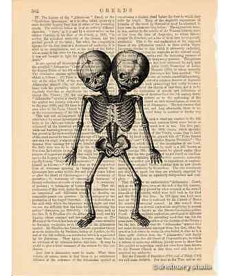 Siamese Twins Skeleton Art Print on Vintage Book Page Home Office Decor Gifts 2