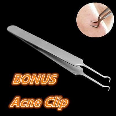 Blackhead Extractor Tool Remover Pimple Blemish Comedone Kit Skin Care Acne Clip 9