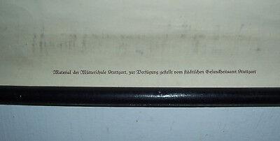 2 x Lehrkarte Mütterschule Stuttgart Hugo Unger Weibliche Organe vor 1945 (18