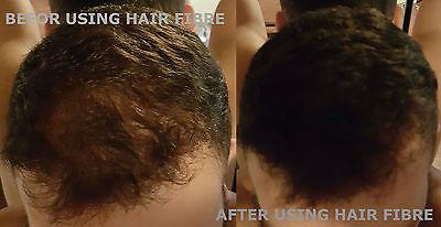 Sevich Keratin Thicker Hair Building Fiber Refill Packs 25 50 100g Natural UK 6