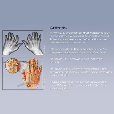 Arthritis Gloves Compression Joint Finger Pain Relief Hand Wrist Support Brace 8