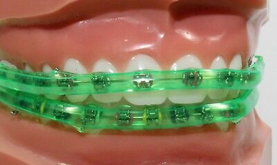 The Mouthguard For Braces Ideas