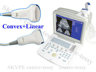 CMS600B3 Portable ultrasound scanner diagnostic system+2 probe(convex+linear)