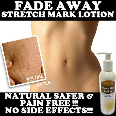 Fade Away Stretch Mark Lotion Cream Stops Discolouration High Strength