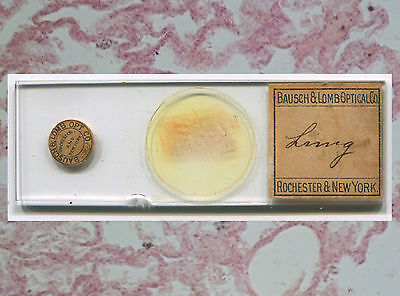 Human Lung Microscope Slide by Bausch & Lomb, ca. 1890