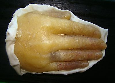 Very Rare Antique Anatomy Model In Wax Of Hand