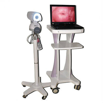 2017 Full Digital Sony Video Electronic Colposcope 850000 Camera Gynaecology SET