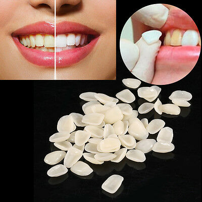 70x Dental Ultra-Thin Whitening Veneers Resin Teeth Temporary Anterior Crown SG